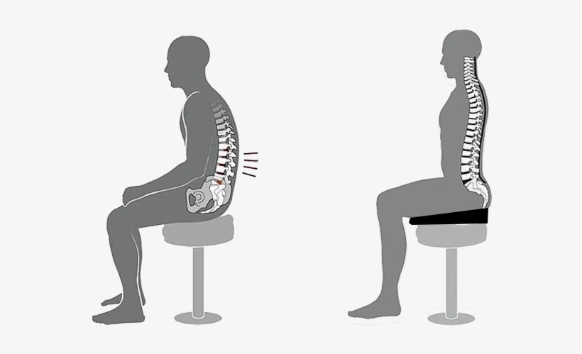 reducing kyphosis by sitting on a wedge. What happens to your body when you sit?