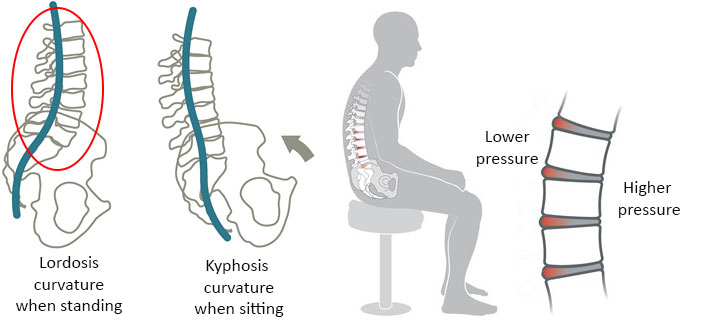what happens when you sit and kyphosis in lumbar spine
