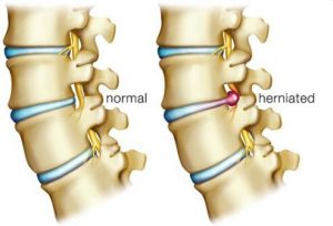 lower back pain and herniated disc