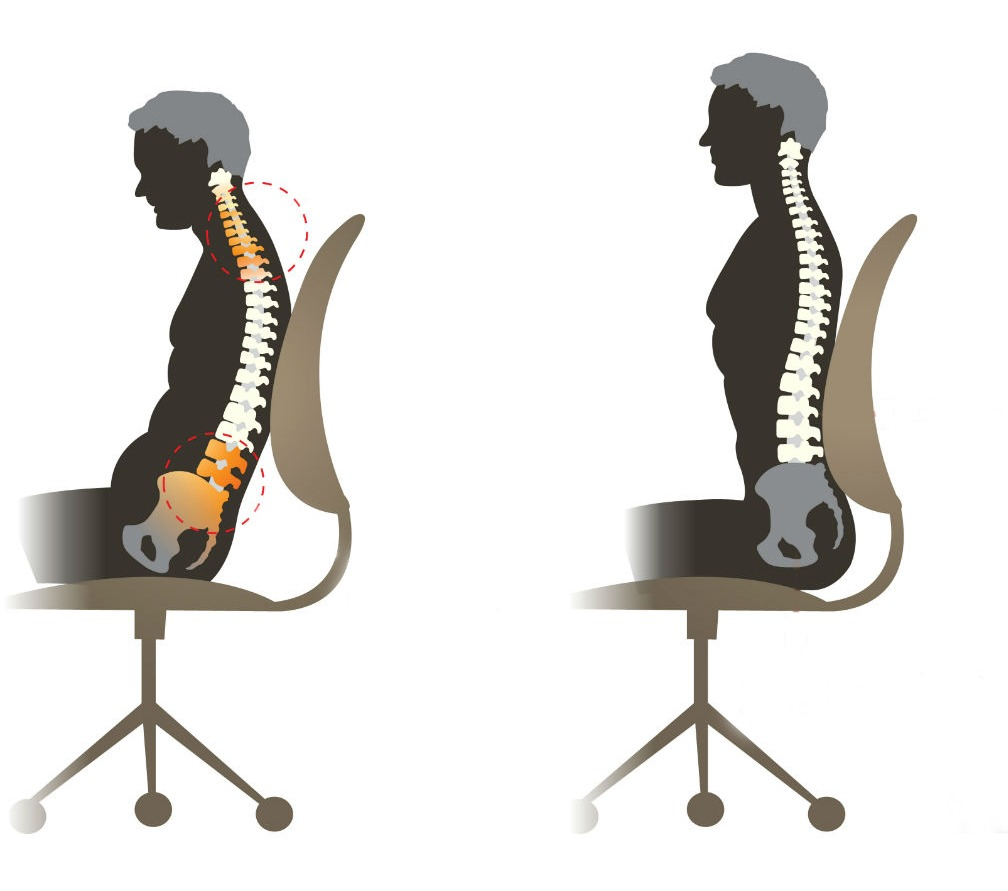 how slouching impacts your body
