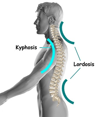 lordosis and kyphosis curvature in back